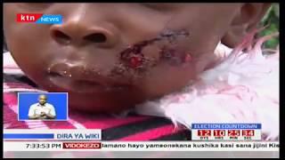 Watu sita wauguza majeraha baada ya kushambuliwa na mbwa koko mtaa wa Nakuru
