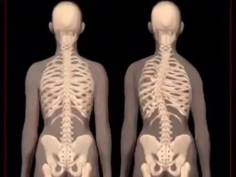 Dolore nellarea podvzdoshny sinistra a osteochondrosis