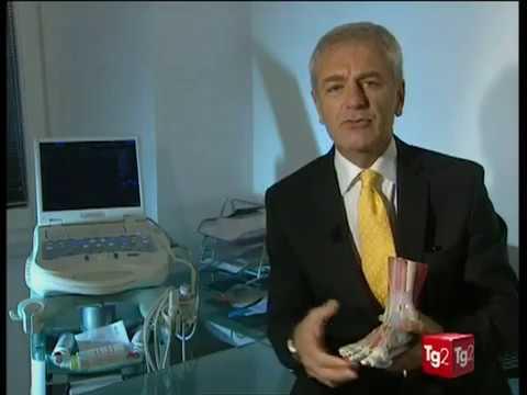 Trattamento di radiculitis lombare di medicina