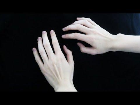 Первые симптомы рака могут проявляться на руках!