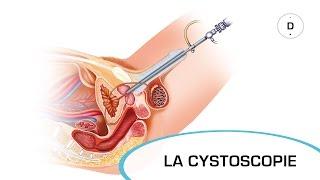 La cystoscopie - Examens médicaux