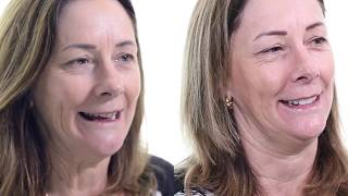 Replacing Missing Teeth with Porcelain Bridges