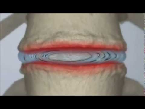 Video How to treat Back Pain.