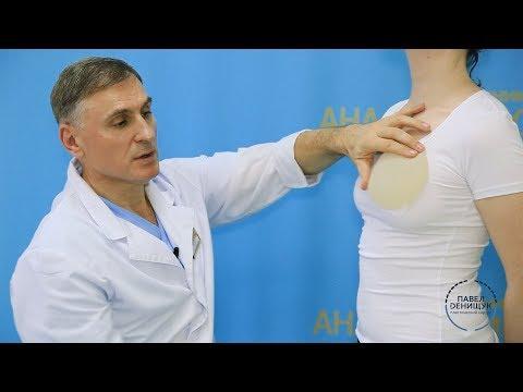 Der Abgang der Nähte nach der Operation auf die Brust