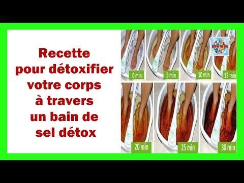 Le traitement de la varice variqueuse les pieds de longuent