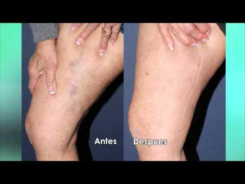 Dieta di eczema di dermatite di atopic