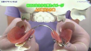 部分入れ歯着脱のコツ