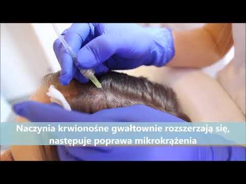 Jakie narzędzia pomogą przywrócić włosy