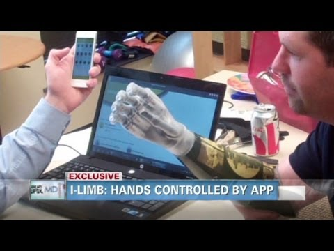 The Man With iPhone-Controlled Bionic Arms