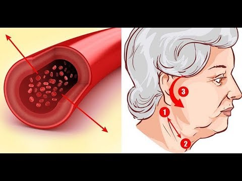Народная медицина против гипертонии