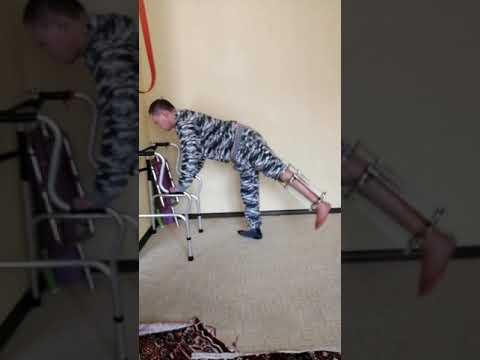 Аппарат илизарова голеностоп колено бедро ЛФК тренировка