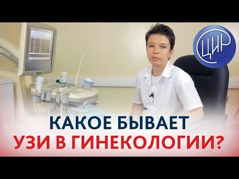 Ультразвуковое исследование (УЗИ) в гинекологии.