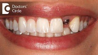 What is the cost estimate for a single tooth implant?-Dr. Jayaprakash Ittigi