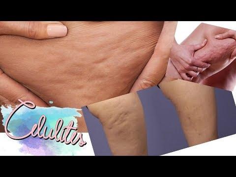 Do que para remover a dor da próstata