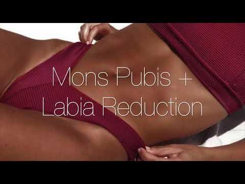 Slim Mons Pubis fogyás - kívánt dátum és kívánt klinika Fogyás mons pubis
