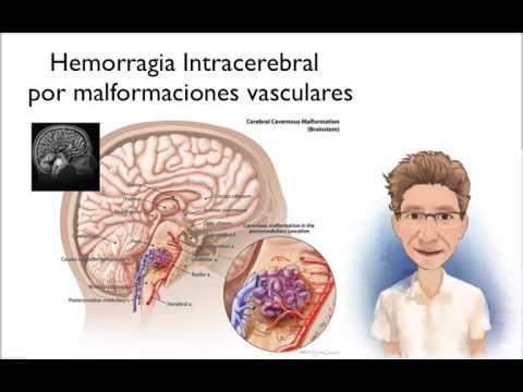 Complicaciones de ensayo crisis hipertensiva