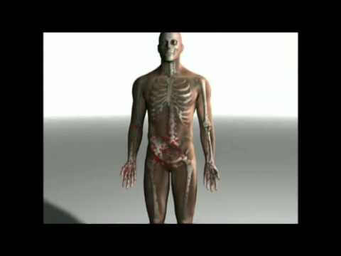 Endometriose Schmerzen im unteren Rücken