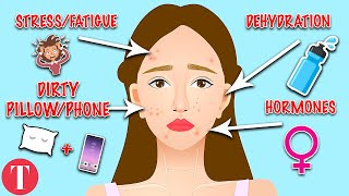 10 Types Of Acne And What They Mean