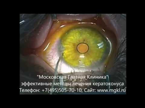 При дальнозоркости делают коррекцию зрения