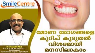 Gum disease in detail - Video