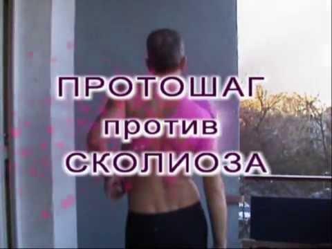 Физиологический кифоз в грудном отделе позвоночника