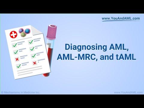 Diagnozowanie ostrych białaczek szpikowych