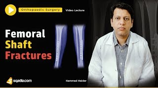 Femoral Shaft Fractures | Orthopedic Surgery | Video Lectures | V-Learning