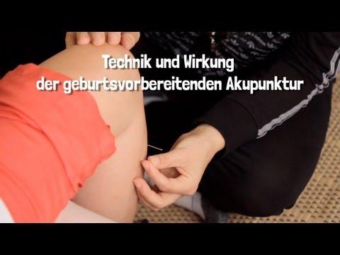 Die Abtragung Vene auf dem Bein vom Laser tscherepowez