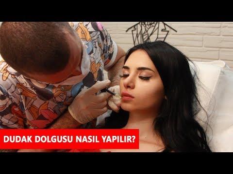 Dudak Dolgusu Nasıl Yapılır? Dr.Onur Fıstıkoğlu ile Soru&Cevap - #vzmedya