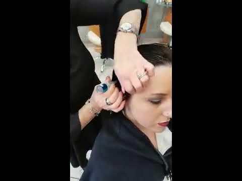 Tecnica di trattamento da psoriasi