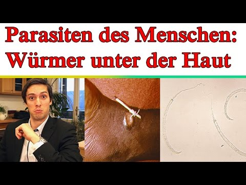 Video der Fliege die Parasiten