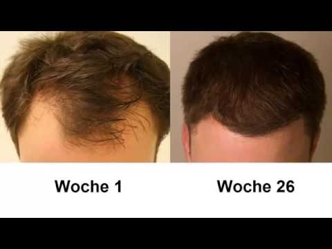 Der Haarausfall des Haares auf dem Kopf bei den Kindern