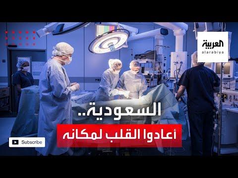 العرب اليوم - شاهد: جرّاح سعودي يكشف تفاصيل عملية نادرة لإعادة قلب طفلة لمكانه الطبيعي