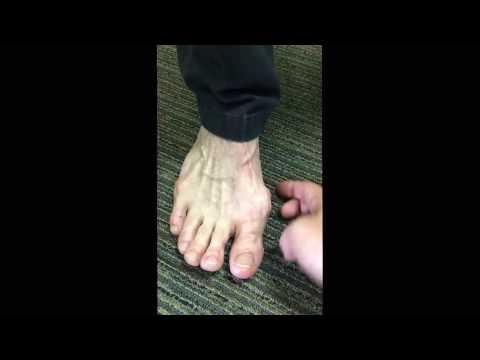 การผ่าตัดเท้ารูปภาพกระดูกนิ้วหัวแม่มือทั้งก่อนและหลัง