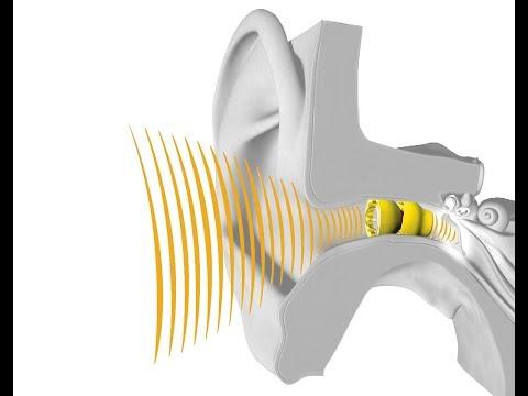 Lyric Hearing at Allison Audiology in Houston, Texas