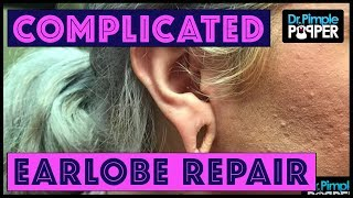 A Little More Complicated Earlobe Repair