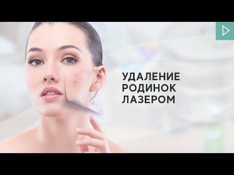 УДАЛЕНИЕ РОДИНОК ЛАЗЕРОМ — Клиника Доктора Панова