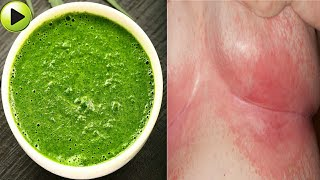 How To Get Rid Of Breast Rashes Naturally At Home Within 1Day   Best Home Remedies For Breast Rashes