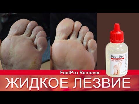 Как правильно использовать жидкое лезвие для педикюра FeetPro? Кислотный педикюр.