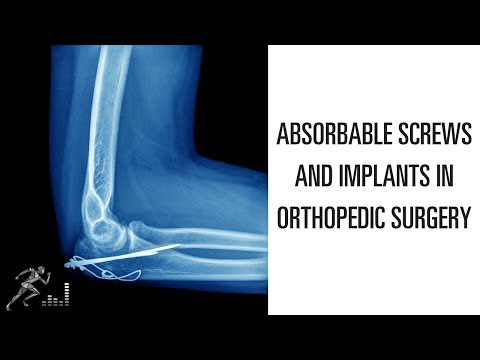Orthopedic Implants at Best Price in India