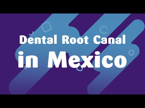 Dental-Root-Canal-in-Mexico