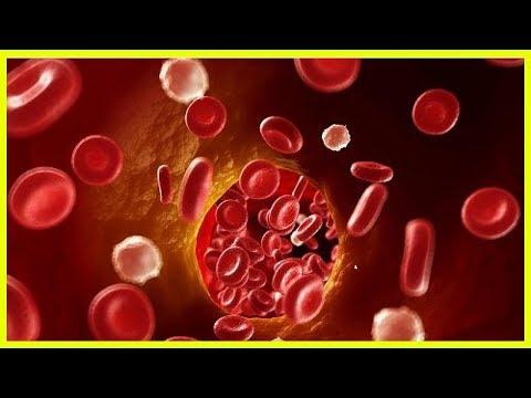 Лікування narodnim von der Methode der Thrombose