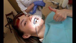 Отбеливание зубов Belle Whitening: видео