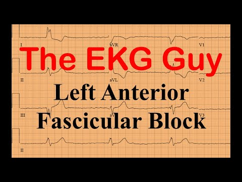Left Anterior Fascicular Block