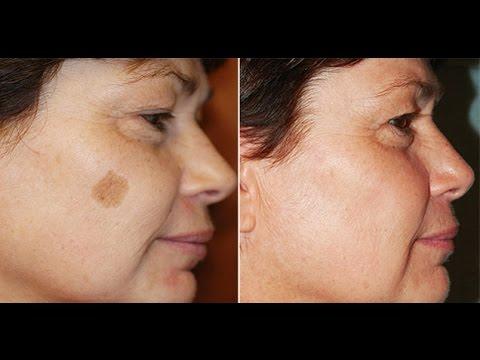 Как замаскировать пигментное пятно на лице