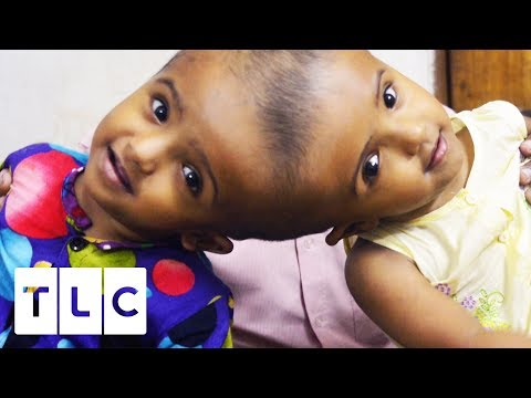 Can These Conjoined Twin Sisters Be Separated Safely? | Body Bizarre