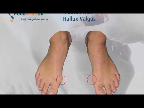 เท้า valgus ในผู้ใหญ่