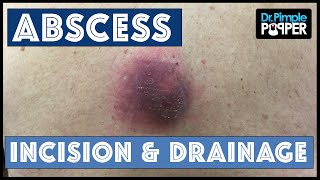 Abscess on Back with Updates!