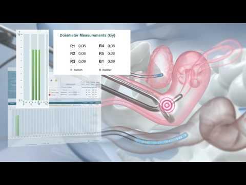 La asignación de los síntomas de la prostatitis