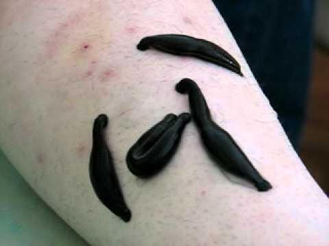 Można wypełnić tatuaż w łuszczycy